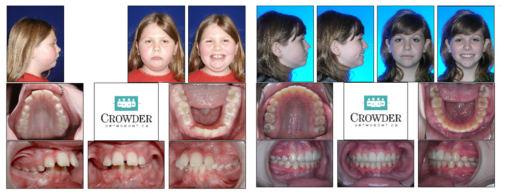 Before And After Dothan And Ozark Al Crowder Orthodontics